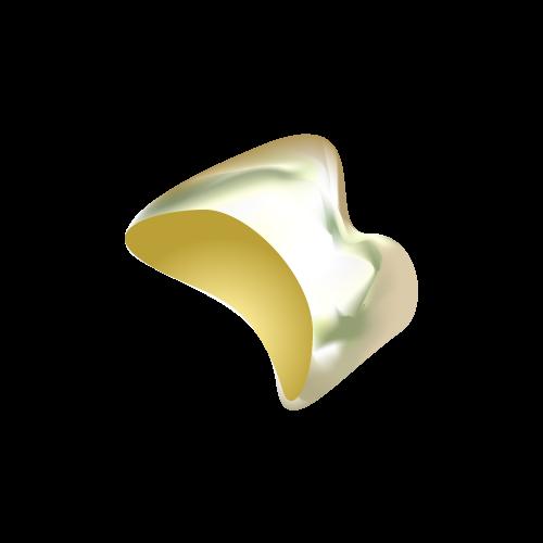 ゴールド(詰め物・被せ物) 【自費】