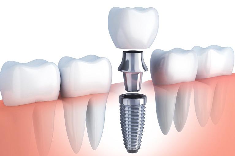 歯を失ってしまったときの選択肢としてご提案