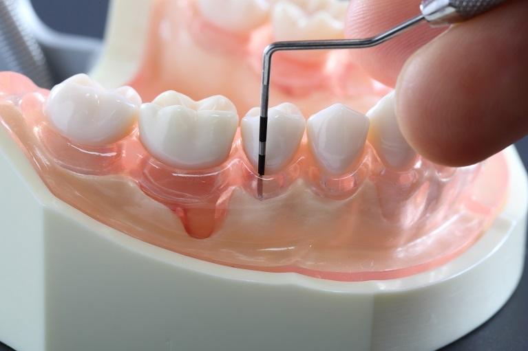 歯周病検査・診断を行う東大阪のタバタ歯科クリニック
