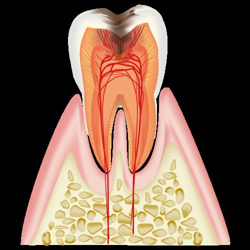 C3 神経まで達したむし歯